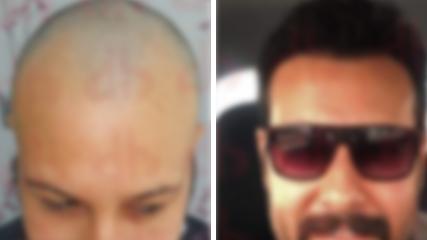Sac Ekim Öncesi ve Sonrası
