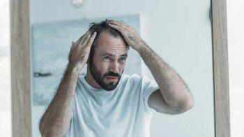 Saç Ekim İle İlgili Terimler
