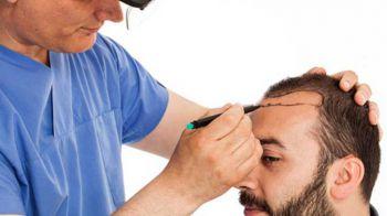 Saç Ekim Teknikleri Arasındaki Farklar